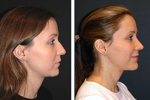 best-ultrasonic rhinoplasty nyc