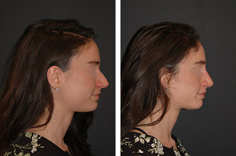 Non Surgical Nose Job New York Non Surgical Rhinoplasty