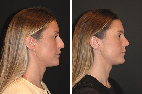 ultrasonic rhinoplasty before and after