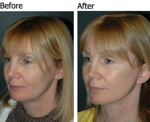 Vertical Facelift Surgery in NYC