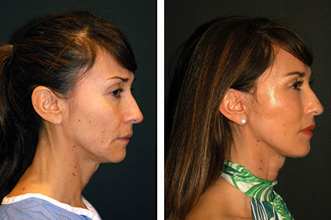 best facelift surgeon america