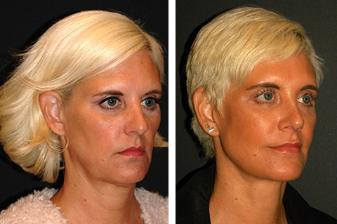 best facelift surgeon in the world