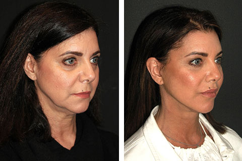 best lateral temporal lift before and after photos 1