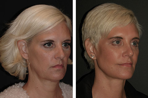 best lateral temporal lift before and after photos 2
