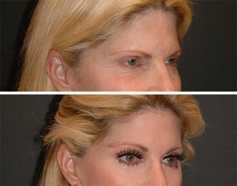 best lateral temporal lift before and after photos 3