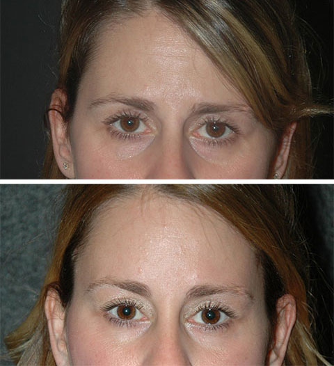 best lateral temporal lift before and after photos 4