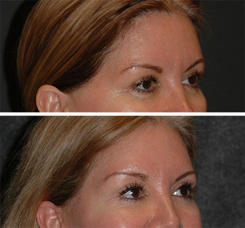 best lateral temporal lift before and after photos 5