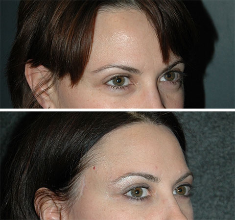 best lateral temporal lift before and after photos 6