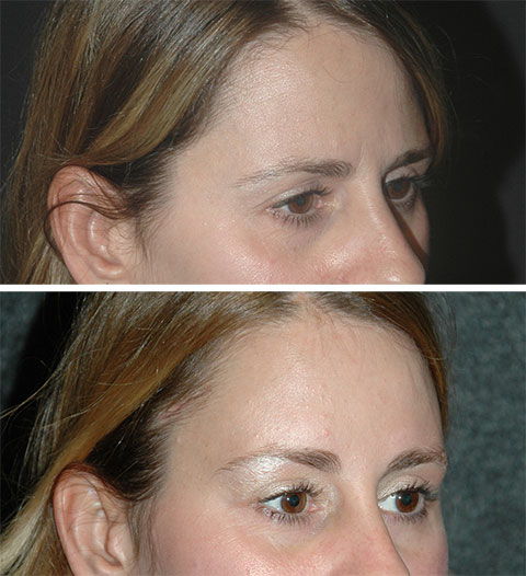 best lateral temporal lift before and after photos 8