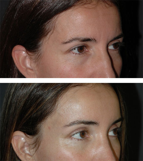 best lateral temporal lift before and after photos 9