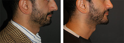 best male chin implant nyc