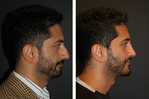 best male rhinoplasty surgeon nyc