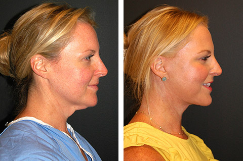 best mini facelift before and after