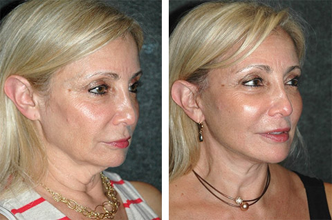 best mini facelift surgeon new york