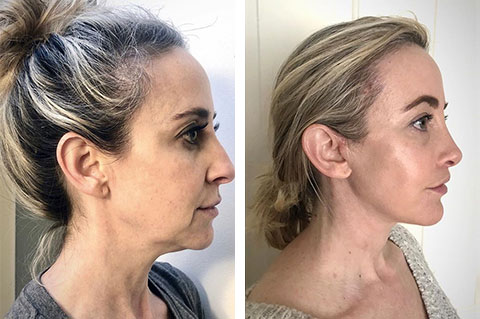 best ponytail facelift before after
