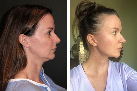 best ponytail facelift nyc