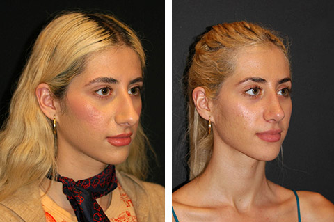 best rhinoplasty before and after