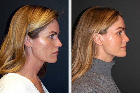 best smas facelift before after photos