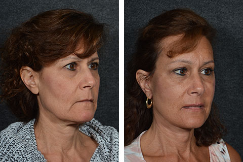 brow lift recovery pictures