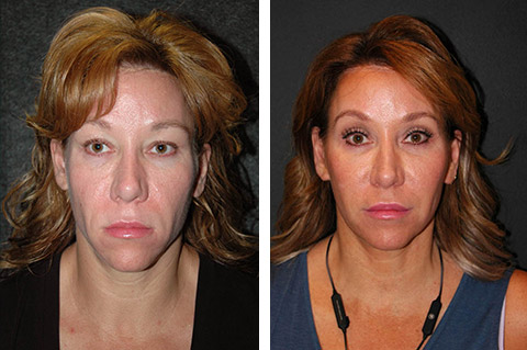 facelift nyc before and after