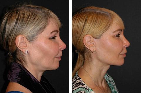facial fat transfer correction nyc
