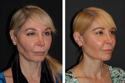 facial fat transfer correction