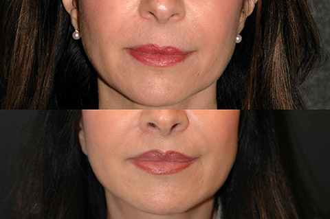 lip lift before and after photo