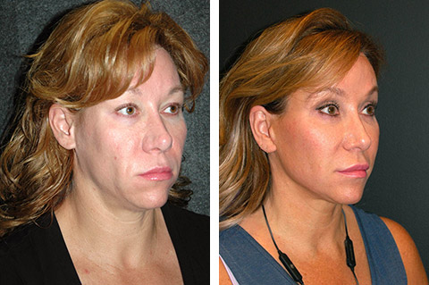 facelift before and after with no general anesthesia