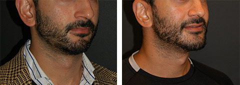 male chin implant new york