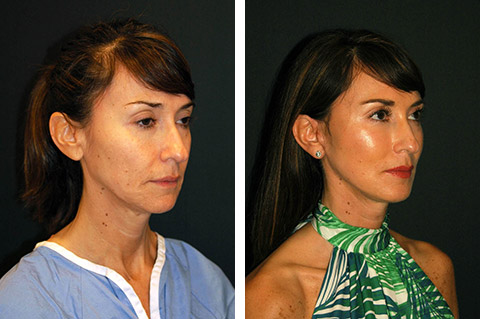 mini facelift-surgery before and after