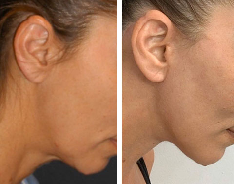 no visible scar ponytail facelift