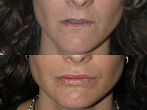 smas lip augmentation before and after