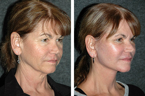 top facelift surgeon in the world