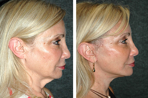top mini facelift surgeon nyc