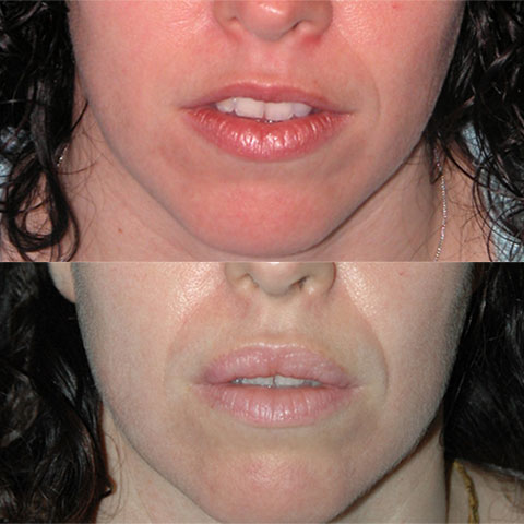 v to y lip augmentation before and after