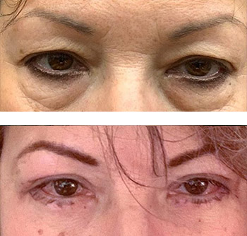 best eyelid surgery results