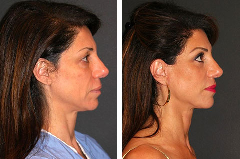 best deep plane facelift before and after 50 year old