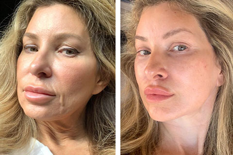 best deep plane facelift before and after