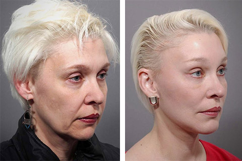 best face lift surgeon world