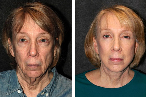 best face lift surgery before after