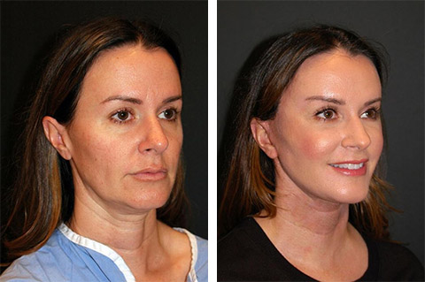 best facelift at forty before after