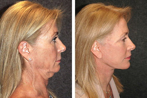 best facelift before after photos