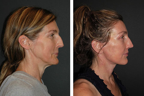 best facelift before and after 50 year old
