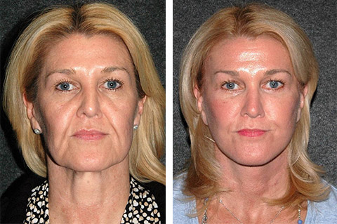 best facelift patient photos