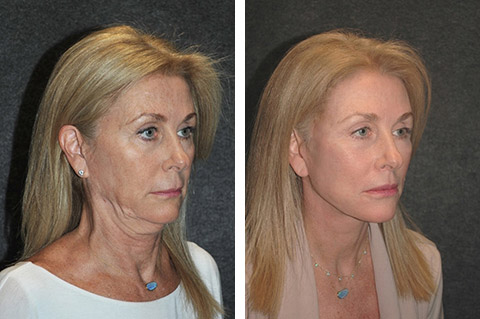 best facelift results world