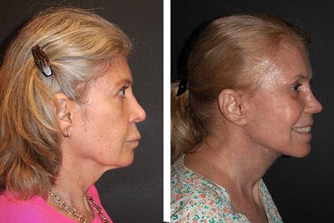best facelift surgeon america