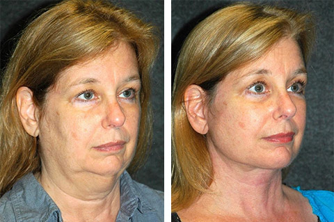 best facelift surgeon new york