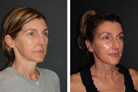 best facelift surgeon usa