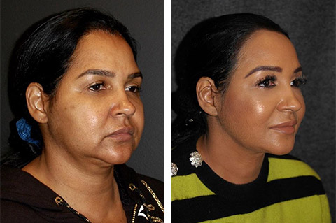 best facelift surgeon world