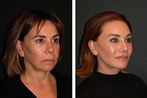 best facelift surgery before and after